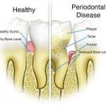 tandvlees ontsteking slechte adem