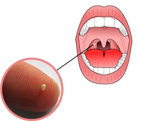 wat doen tegen tonsil stones